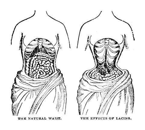 Effects of Tight Lacing