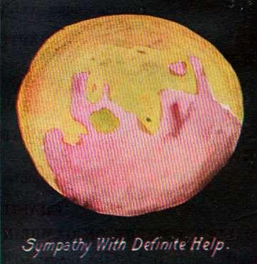 Sympathy with Definite Help